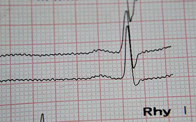 кардиология, кардиология вишневое, кардиология в вишневом, болезни сердца, сердечно-сосудистые заболевания